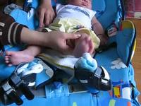 Con trai 2 tháng rưỡi của cảnh sát biển bị khèo chân, tim bẩm sinh