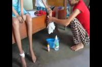 Không có tiền đưa con đi viện người mẹ nghèo mỗi ngày tự mình chăm sóc vết thương cho các con.