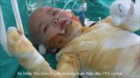 Bị chảo mỡ đổ vào người, bé 2 tuổi bỏng 75% cơ thể