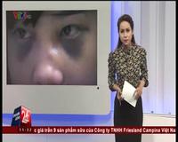 Nữ sinh Phú Thọ bị đánh hội đồng