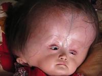 Xúc động trao tiền cho bé 15 tháng tuổi bị não úng thủy
