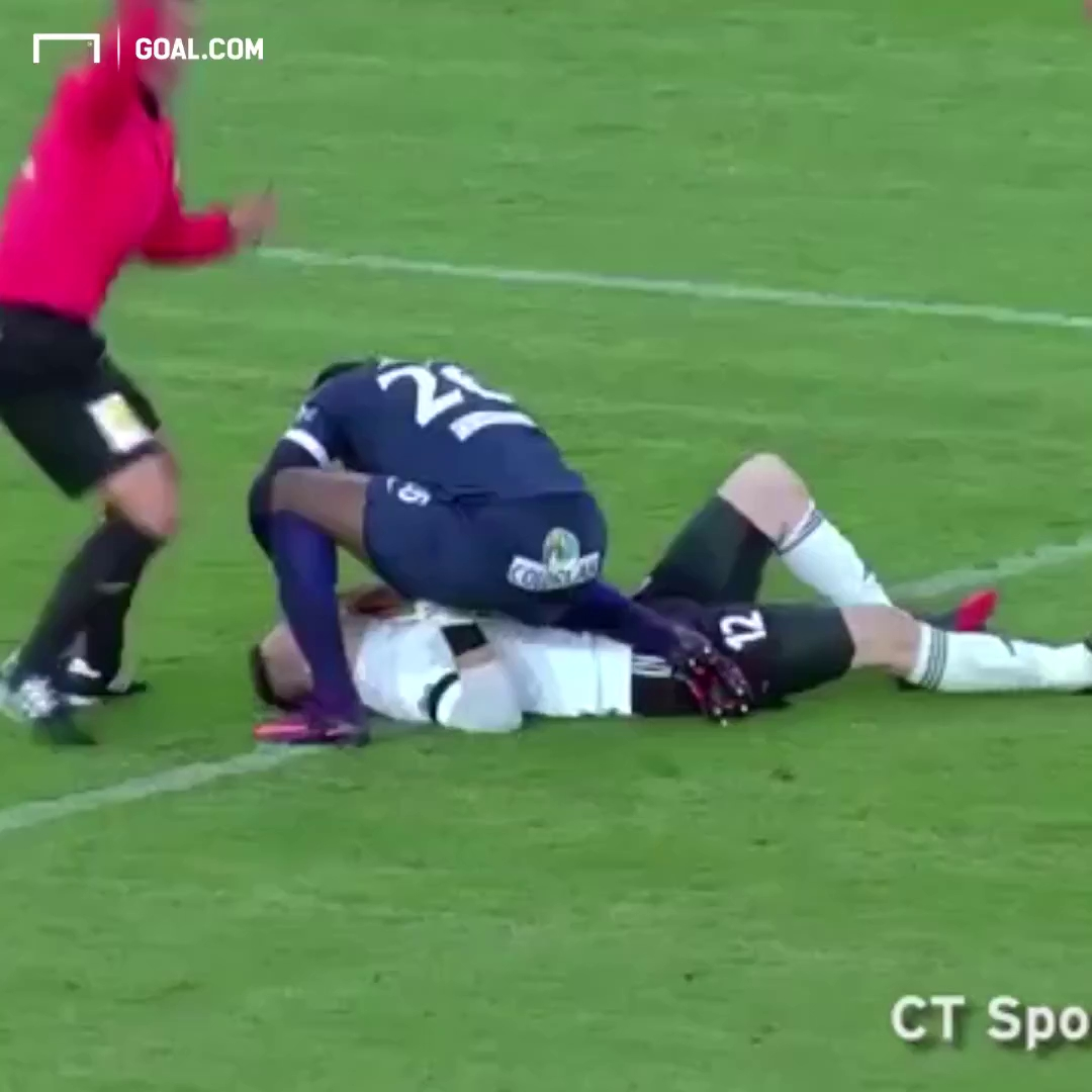 Cứu mạng đối phương, cầu thủ bị cắn đứt gân tay.