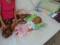 Thương bé trai 5 tháng rưỡi bị bệnh tim bẩm sinh, viên gan, não úng thủy