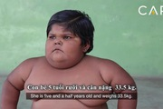 Gia đình có 3 đứa trẻ nặng cân nhất thế giới