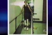 Dancing With The Stars: Phần trình diễn của vận động viên cụt chân Amy trong liveshow 1