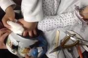 Bé gái 18 tháng tuổi bị mắc kẹt đầu vào ấm nước một cách khó hiểu