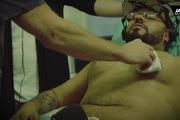 Hai người đàn ông phẫu thuật nâng ngực để thử cảm giác làm phụ nữ