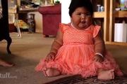 Mắc bệnh lạ, em bé 10 tháng lớn bằng trẻ 5 tuổi