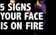 5 khoảnh khắc đùa nghịch với lửa cực kỳ nguy hiểm