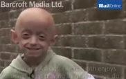 Cô bé 11 tuổi trông như bà cụ 80 tuổi vì căn bệnh lão hóa nhanh gấp 8 lần