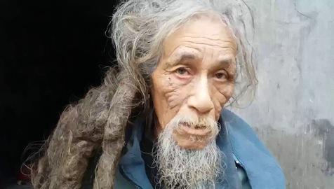 Tâm sự của người đàn ông có mái tóc