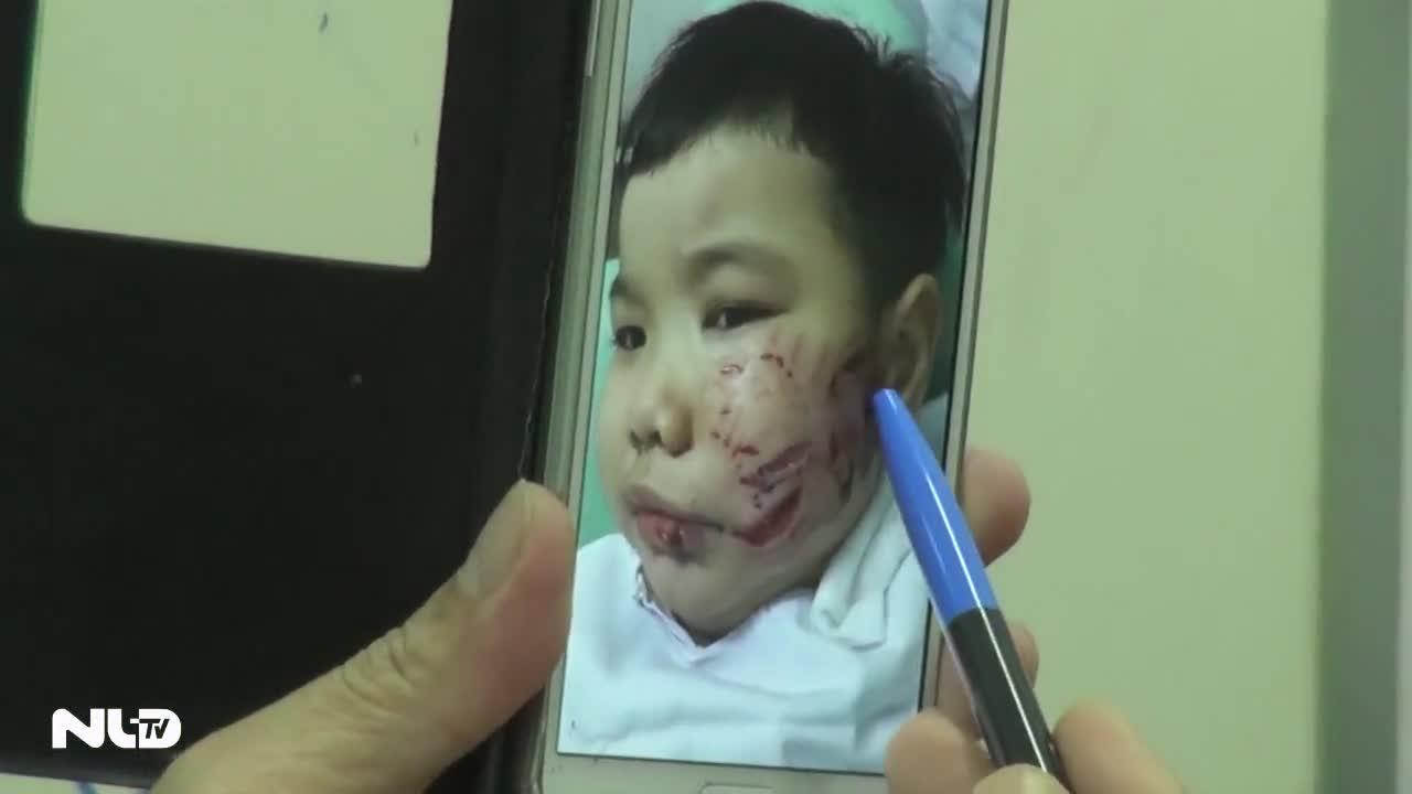 Bé trai bị chó cắn vào mặt phải khâu hơn 200 mũi