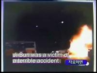 Khâm phục nghị lực của cô gái Hàn Quốc bị bỏng nửa cơ thể