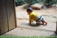 Tiếng kêu cứu của bé 1 tuổi người dân tộc Dao không có tiền đi mổ.