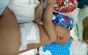 Mới gần 2 tuổi, bé Lộc Ninh đã trải qua 2 ca phẫu thuật và đang đứng trước ca thứ 3