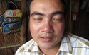 Anh Nguyễn Văn Thắng mong có tiền phẫu thuật thay xương.