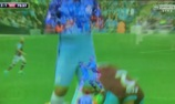 Aguero giật cùi chỏ vào mặt cầu thủ West Ham