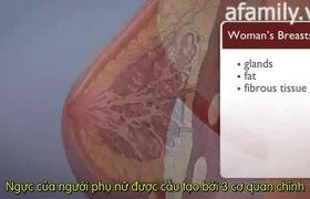 Xơ nang tuyến vú: bệnh rất hay gặp ở chị em