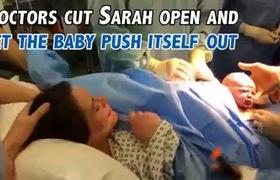 Em bé tự chui ra khỏi bụng mẹ trong ca sinh mổ tự nhiên