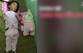 Em bé Lào Cai 14 tháng tuổi chỉ nặng bằng trẻ sơ sinh